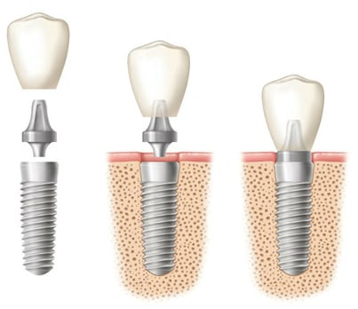 Diagram of three phases of a dental implant. 1 - Three separate pieces - fixture, abutment, and crown. 2. Implant fixture in bone with abutment and crown hovering over it. 3. Implant fixture in bone with abutment and crown attached - from Kentucky Dental Group of Lexington.