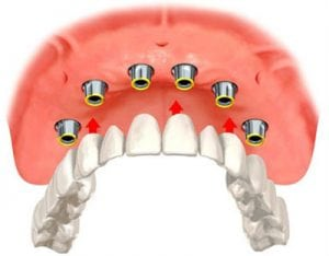 Diagram of implant overdentures with the denture teeth suspended below the bone arch and implants, from the office of Kentucky Dental Group in Lexington.