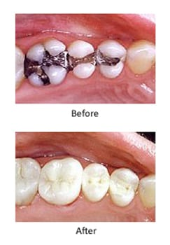 Metal-free dentistry before and after photos of amalgam fillings replaced with composite fillings, replaced by Kentucky Dental Group of Lexington.