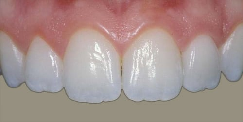 Photo of six upper front teeth, one of which is a porcelain crown, for an example of natural looking restorations, also available from Kentucky Dental Group of Lexington.