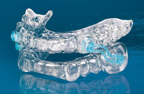 Photo of a Silent Night appliance, which helps with sleep apnea and snoring - available from Kentucky Dental Group of Lexginton.