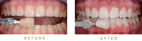 Close-up photos of teeth and gums for an example of before-and-after results of teeth whitening from Kentucky Dental Group of Lexington.