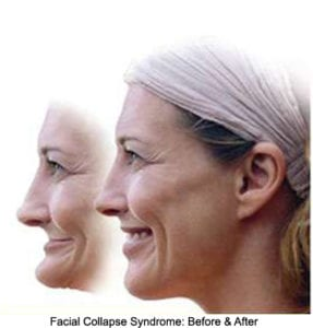 illustration of a woman's profile before and after facial collapse