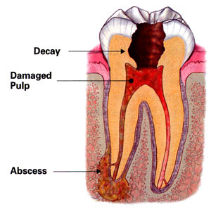 Image of an abcessed tooth