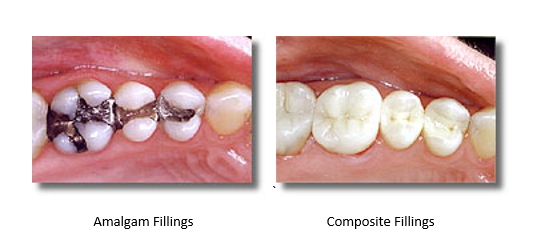 Before and after mercury free fillings