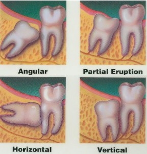 A diagram showing four examples of impacted wisdom teeth
