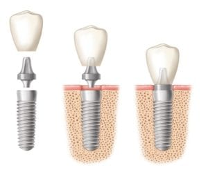 Dental implant in three images